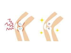 変形性膝関節症の運動方法を体験してみて分かったことや注意点