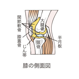 変形性膝関節症が女性に多い原因は?加齢だけじゃないので要注意
